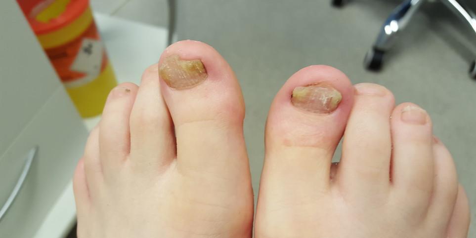 Prosthetic Toe Nails Wilde Pedique